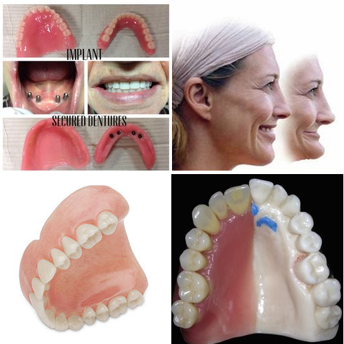Temporary_Immediate Dentures Collage for Services Page