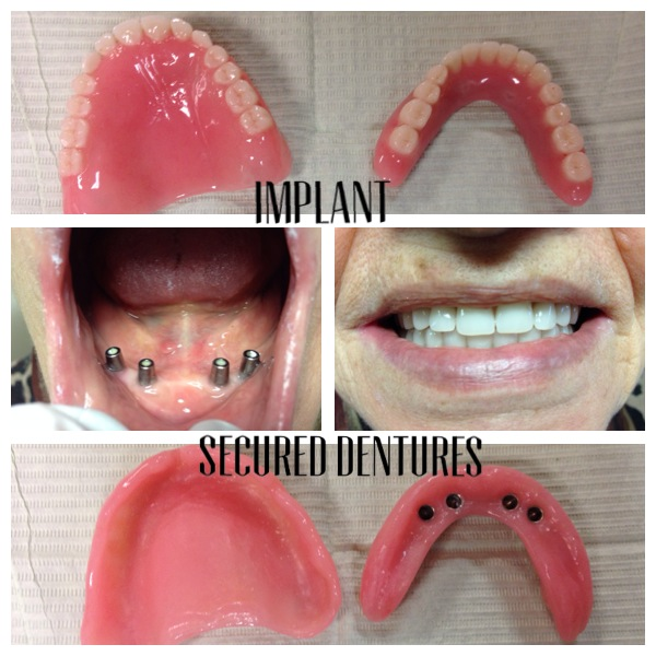 Implant Secured Dentures Is the Answer!!