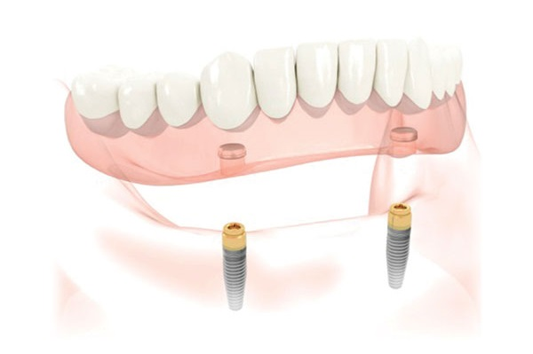 We Are the Denture Implant Specialists